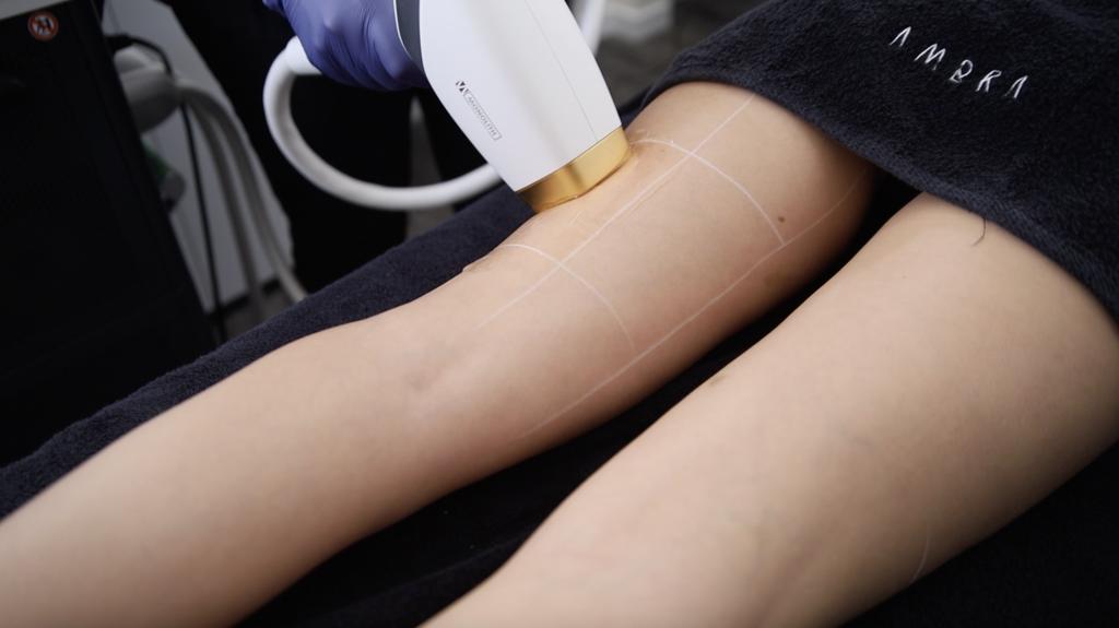 Manipolo di Monolith Esthelogue appoggiato sulla gamba di una donna durante una seduta di epilazione permanente